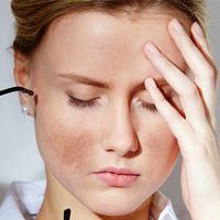 Tại sao da mặt bạn có nám và kem trị nám hiệu quả?