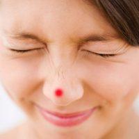 Trị mụn bọc sưng đỏ ở mũi dễ hay khó?