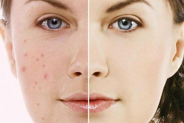 Chia sẻ cách chăm sóc da mặt sau khi nặn mụn ở Spa.