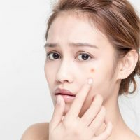 Bí quyết trị sẹo mụn: Cảnh báo của các chuyên gia về thói quen tự nặn mụn