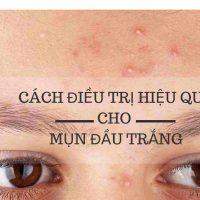 7 giải pháp trị sạch mụn đầu trắng tận gốc