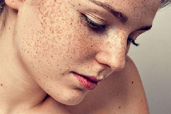 Tìm hiểu chế độ ăn cho từng loại da mà không cần mỹ phẩm đắt tiền.