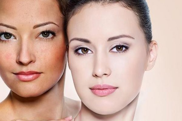 Những phương pháp trị nám da giúp bạn có làn da rạng rỡ.