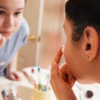 Bí quyết trị sạch mụn: Sau khi nặn mụn bạn nên làm gì?