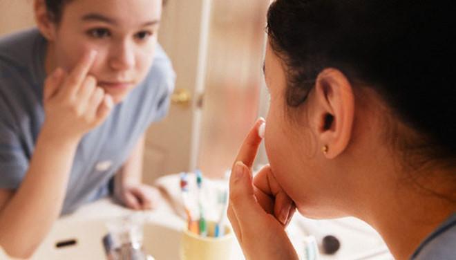 Kem trị mụn sẽ giúp se khí vết thương hở và kích thích da mới phát triển