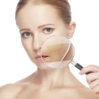 Nám da: Nguyên nhân và cách hỗ trợ điều trị tận gốc