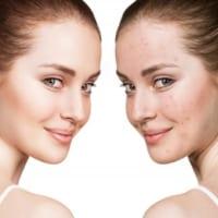 Cần những bước quan trọng nào để chăm sóc da mụn?