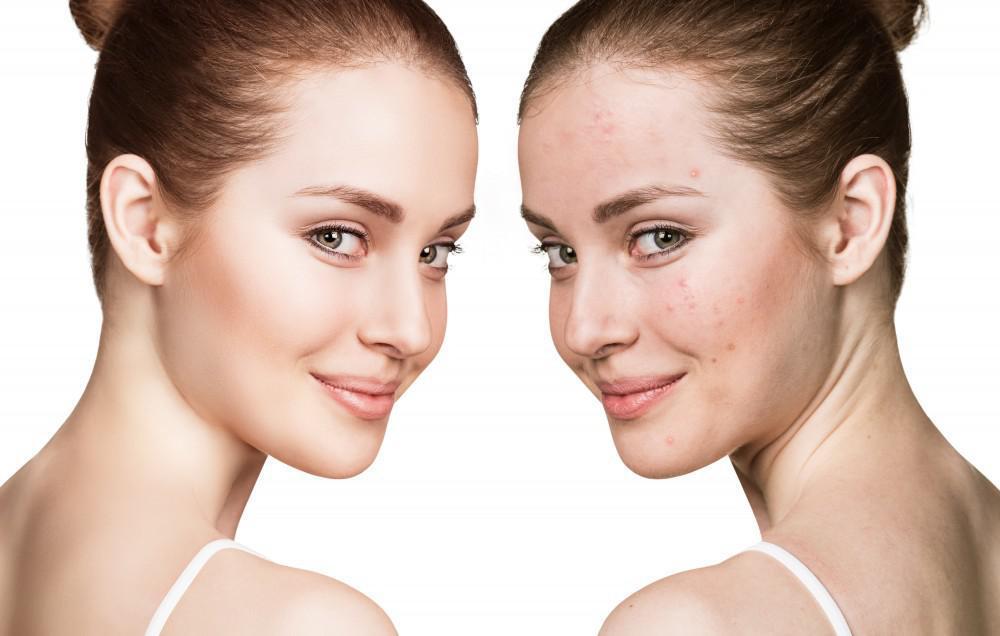 Hãy dành ra thời gian rảnh rỗi mỗi ngày để thực hiện các cách chăm sóc da mụn