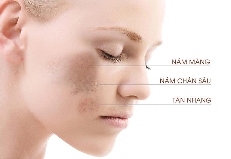 Nằm trong top 5 dấu hiệu lão hóa da là những đốm nám, tàn nhang