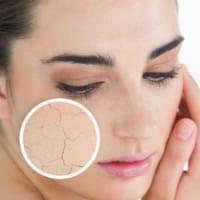 Dưỡng ẩm cho da khô bằng phương pháp khoa học và hiệu quả
