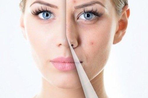 Thay da sinh học là một phương pháp đã được các nhà khoa học, bác sĩ trên thế giới khuyên dùng