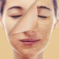 7 cách trị da mặt khô, tróc vảy tại nhà hiệu quả tức thì