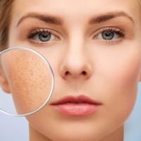 Tìm hiểu các loại sẹo do mụn và cách điều trị sẹo mụn hiệu quả
