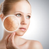 Các mẹo dưỡng da khô vào mùa hè, bạn đã biết hay chưa?