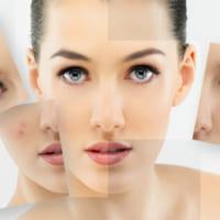 Da khô có bị mụn không? Hướng dẫn cách chăm sóc da khô hiệu quả