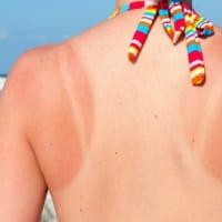 6 tác hại không lường của việc không dùng kem chống nắng